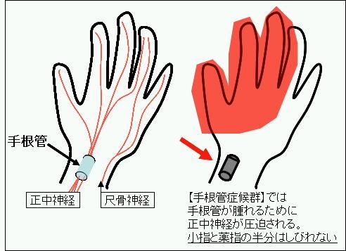 左手 薬指 しびれ